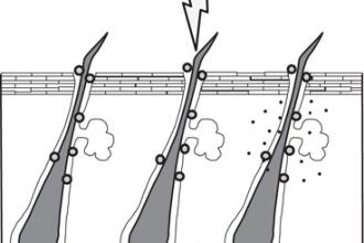 Adapalen làm tăng sự xâm nhập của Clindamycin vào nang lông khi...
